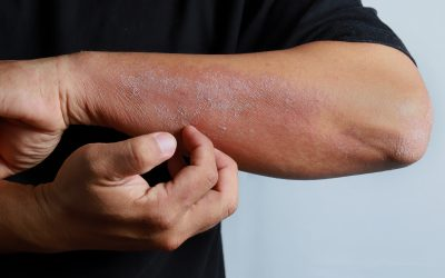 Dupixent® (dupilumab) now available in South Africa for treatment of adult patients with moderate-to-severe atopic dermatitis